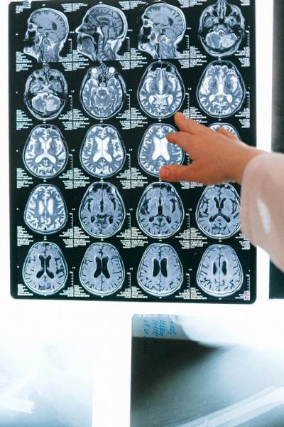 glombang otak manusia, ketenangan, kecerdasan